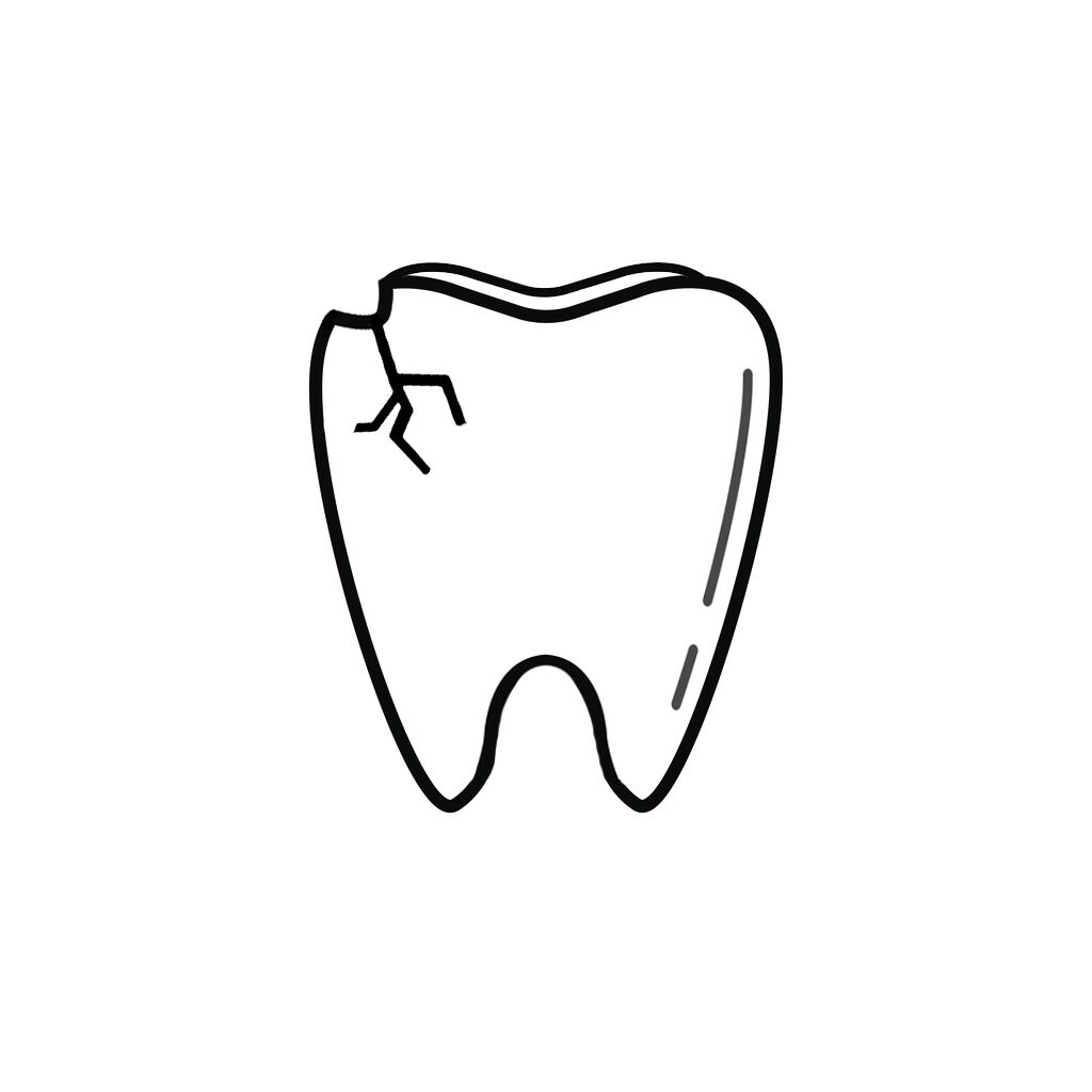Storm Lake IA Dentist | I Chipped a Tooth! What Can I Do?